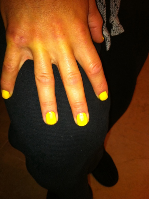 Yankees Catcher Russell Martin Paints Fingernails Bright Yellow, Shows Off Picture on Twitter