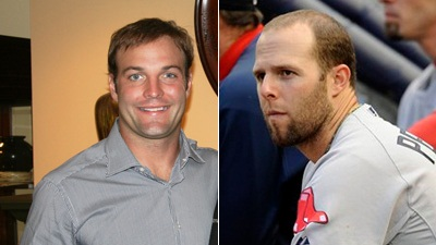 Wes Welker Doesn't Convince Dustin Pedroia, Who Says He's 'Plenty Good Looking' Without Hair Adjustment