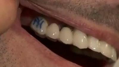 Fan Gets Yankees Logo Tattooed Onto Tooth, Can't Decide Between Saving Wife or Derek Jeter (Video)