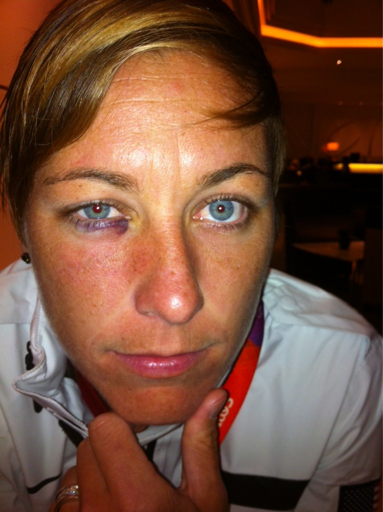 Abby Wambach Shows Off Black Eye After Getting Smacked in Face in Win Over Colombia (Photo)
