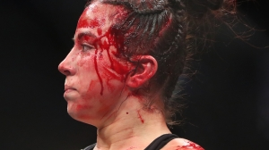 UFC Fighter Maycee Barber Suffers Facial Cut That Will Make You Cringe
