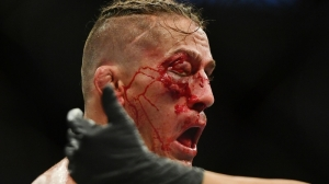 UFC Fighter Niko Price Shares Nasty Photo Of Facial Wounds After Loss